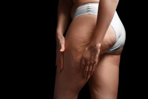 What Is The Difference Between Stretch Marks And Cellulite 2